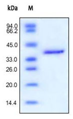 SDS-PAGE - IGF2 protein (Fc Chimera Active) (ab155617)
