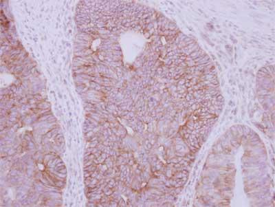 Immunohistochemistry (Formalin/PFA-fixed paraffin-embedded sections) - Anti-GDF 5 antibody (ab155670)