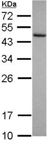 Western blot - Anti-Cytohesin 3 antibody (ab155691)