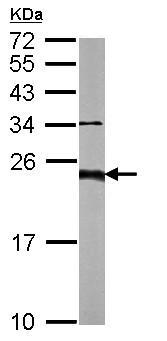 Western blot - Anti-TAPA1 antibody (ab155760)