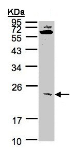 Western blot - Anti-UBE2M antibody (ab155783)