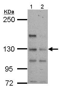 Western blot - Anti-TTLL4 antibody (ab155801)