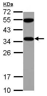Western blot - Anti-VDAC2 antibody - C-terminal (ab155803)