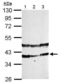 Western blot - Anti-PHYHIP antibody - N-terminal (ab155805)
