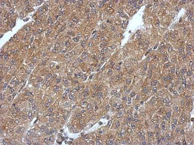 Immunohistochemistry (Formalin/PFA-fixed paraffin-embedded sections) - Anti-PHYHIP antibody - N-terminal (ab155805)