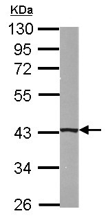 Western blot - Anti-B4GALT5 antibody (ab155905)