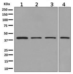 Western blot - Anti-Tropomodulin 3 antibody [EPR10302(B)] (ab155968)