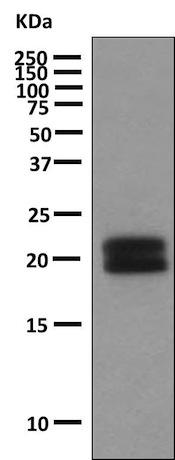 Western blot - Anti-Human Growth Hormone antibody [EPR9524] (ab155975)