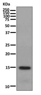 Western blot - Anti-Map17 antibody [EPR10372] (ab156014)