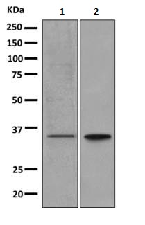 Western blot - Anti-OR11L1 antibody [EPR9999] (ab156020)