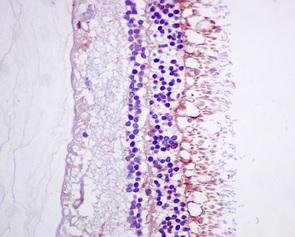 Immunohistochemistry (Formalin/PFA-fixed paraffin-embedded sections) - Anti-DHRS7  antibody [EPR9339(B)] (ab156021)