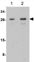 Western blot - Anti-RRAS2 antibody (ab156270)