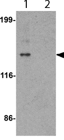 Western blot - Anti-ZNF521 antibody (ab156271)