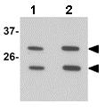Western blot - Anti-MS4A6A antibody (ab156278)