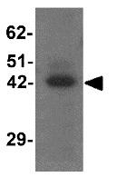 Western blot - Anti-TMEM59L antibody - C-terminal (ab156287)