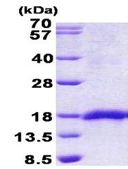 SDS-PAGE - SEP15 protein (His tag) (ab156315)
