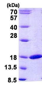 SDS-PAGE - RBP2 protein (His tag) (ab156317)