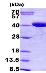 SDS-PAGE - Coproporphyrinogen Oxidase (CPOX) protein (His tag) (ab156318)
