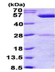 SDS-PAGE - phrB protein (His tag) (ab156352)