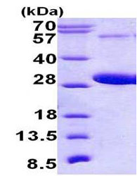 SDS-PAGE - RAB5C protein (His tag) (ab156358)