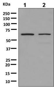 Western blot - Anti-hnRNP K antibody [EPR10933 ] (ab156570)