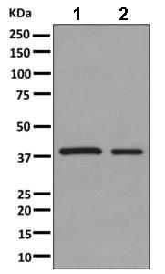 Western blot - Anti-ACADS antibody [EPR10862(B)] (ab156571)