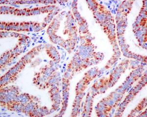 Immunohistochemistry (Formalin/PFA-fixed paraffin-embedded sections) - Anti-ACADS antibody [EPR10862(B)] (ab156571)