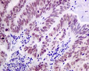 Immunohistochemistry (Formalin/PFA-fixed paraffin-embedded sections) - Anti-Cdc25A (phospho S124) antibody [EPR8888] (ab156574)
