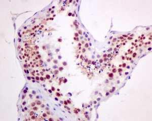 Immunohistochemistry (Formalin/PFA-fixed paraffin-embedded sections) - Anti-Cdc25A (phospho S124) antibody [EPR8888] (ab156574)