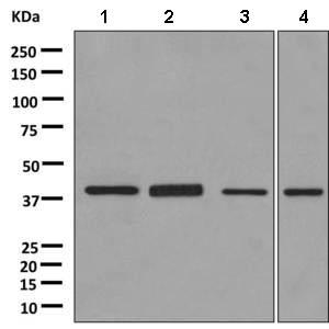 Western blot - Anti-ACOT7 antibody [EPR11317(B] (ab156576)