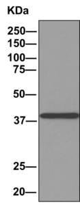 Immunoprecipitation - Anti-ACOT7 antibody [EPR11317(B] (ab156576)