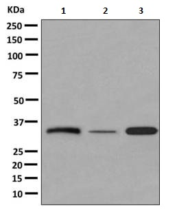 Western blot - Anti-GJB3 antibody [EPR6977(2)] (ab156582)