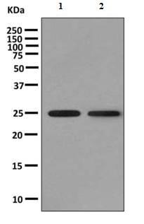 Western blot - Anti-KLRC3 antibody [EPR10869] (ab156588)