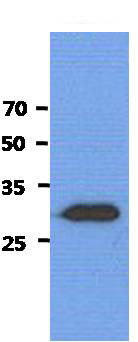 Western blot - Anti-Shwachman Bodian-Diamond syndrome antibody [AT1E8] (ab156615)