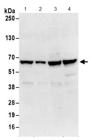 Western blot - Anti-Poly(A) RNA polymerase, mitochondrial  antibody (ab156684)