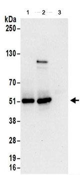 Western blot - Anti-KRR1 antibody (ab156696)