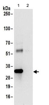 Immunoprecipitation - Anti-RRP4 antibody (ab156698)