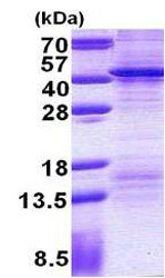 SDS-PAGE - FSBP protein (His tag) (ab156713)