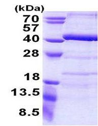 SDS-PAGE - ANKRD54 protein (His tag) (ab156716)