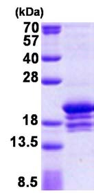 SDS-PAGE - DNA Polymerase epsilon protein (His tag) (ab156724)