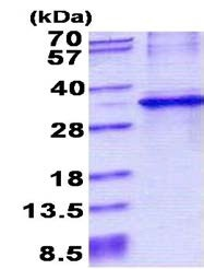 SDS-PAGE - CYB5R1 protein (His tag) (ab156728)