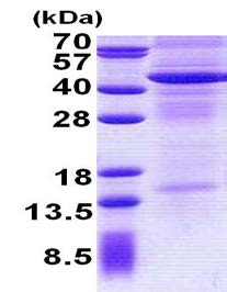 SDS-PAGE - IL13 receptor alpha 2 protein (His tag) (ab156730)