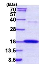 SDS-PAGE - Ribonuclease 7 protein (His tag) (ab156731)
