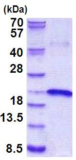 SDS-PAGE - IL17B protein (His tag) (ab156733)