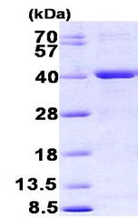 SDS-PAGE - MYH protein (His tag) (ab156738)