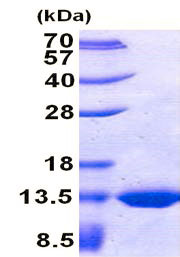 SDS-PAGE - TST protein (His tag) (ab156746)