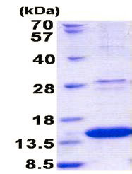 SDS-PAGE - robld3 protein (His tag) (ab156748)