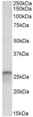 Western blot - Anti-Calbindin antibody (ab156812)