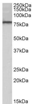 Western blot - Anti-DYRK1A antibody (ab156818)