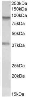 Western blot - Anti-VAP1 antibody (ab156821)